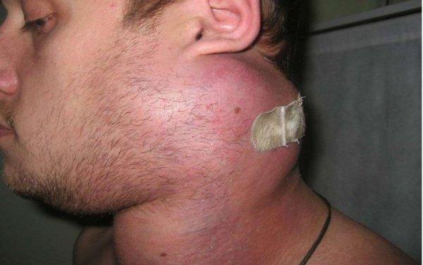 Лимфосаркома у мужчины