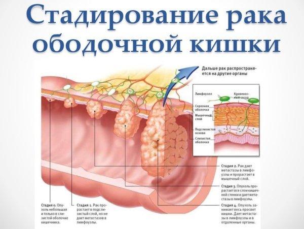 Стадирование рака ободочной кишки