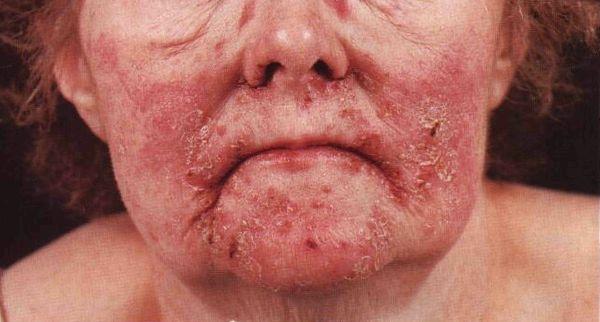 Некролитическая миграционная эритема на лице у женщины