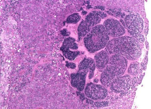 Гепатобластома печени микропрепарат