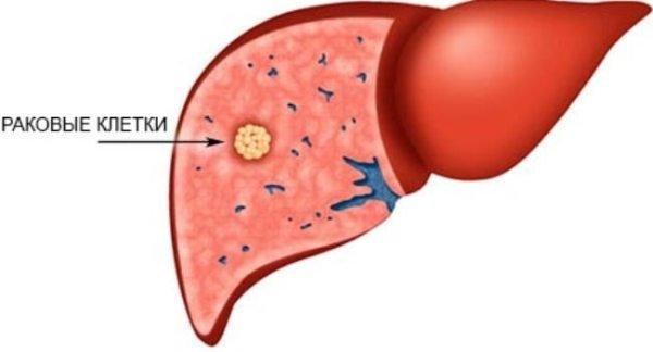 Гепатобластома печени