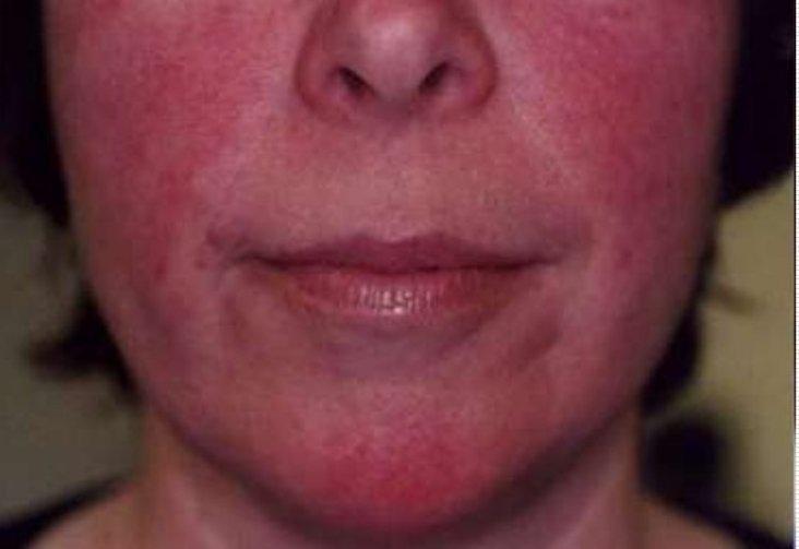 Приливы крови и покраснение лица (гиперемия) у женщины на лице фото