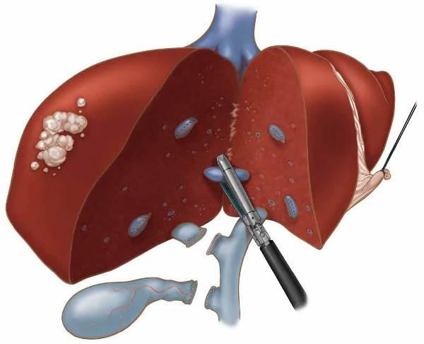 Лапароскопическая гепатэктомия печени