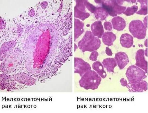 Гистология рака легкого