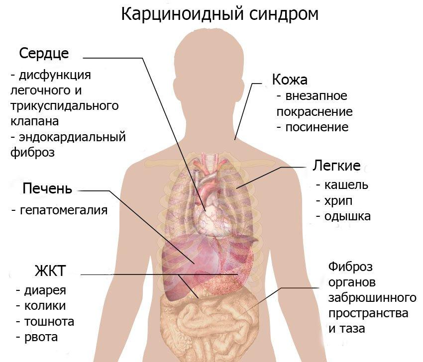 Карциноидный синдром