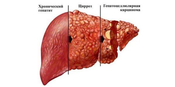 Стадии заболевания печени