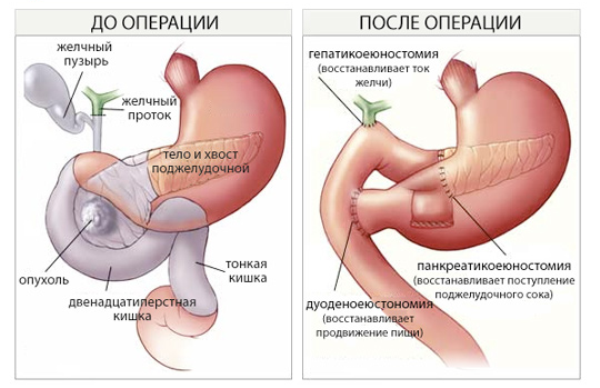 Опухоль желчного протока. Операция Уиппла