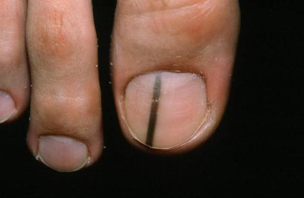 Подногтевая меланома большого пальца ноги