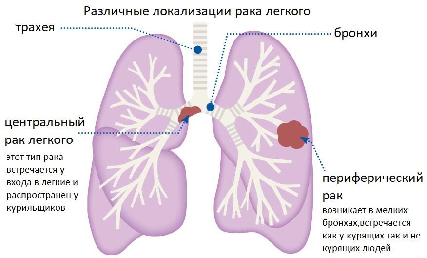 Локализация центрального рака легкого