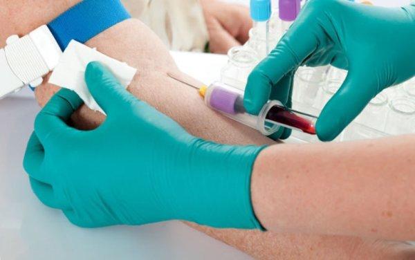 Забор крови на онкомаркеры