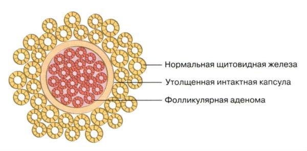 Фолликулярные аденомы