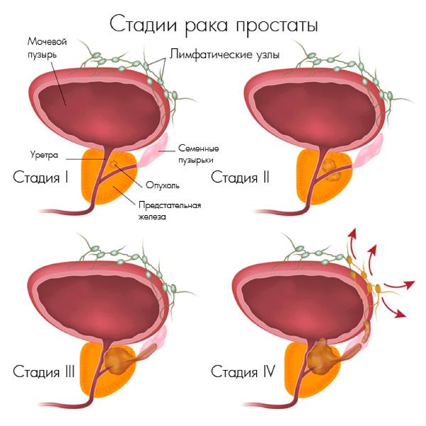 Стадии аденокарциномы простаты