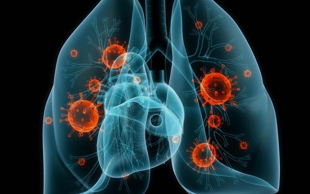 аденокарцинома легкого может привести к смерти в очень короткие сроки