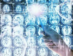 Новое лекарство от рака мозга у детей