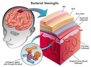 Лечение менингиомы в Израиле