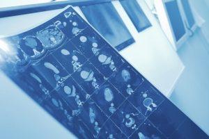 Методы лечения лимфомы в Израиле