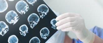 карта опухолей мозга