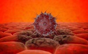 Израильские ученые нашли причину агрессивности меланомы